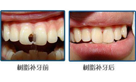 纳米树脂补牙:纳米树脂补牙不仅具有美观,咀嚼性能好,安全性好等优点