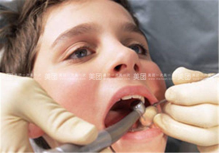 补牙步骤: 第一步检查:口腔全面检查,分析蛀牙情况.