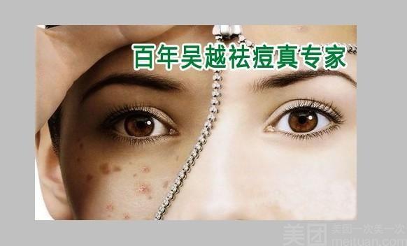 百年吴越祛痘连锁机构-美团