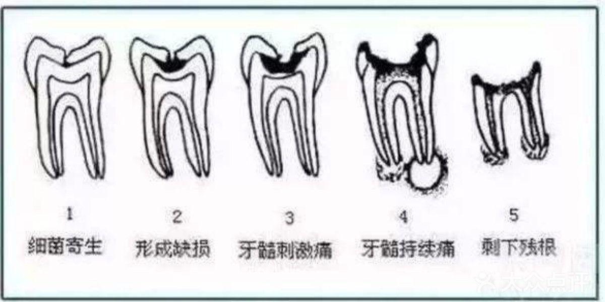 龋齿的发展过程