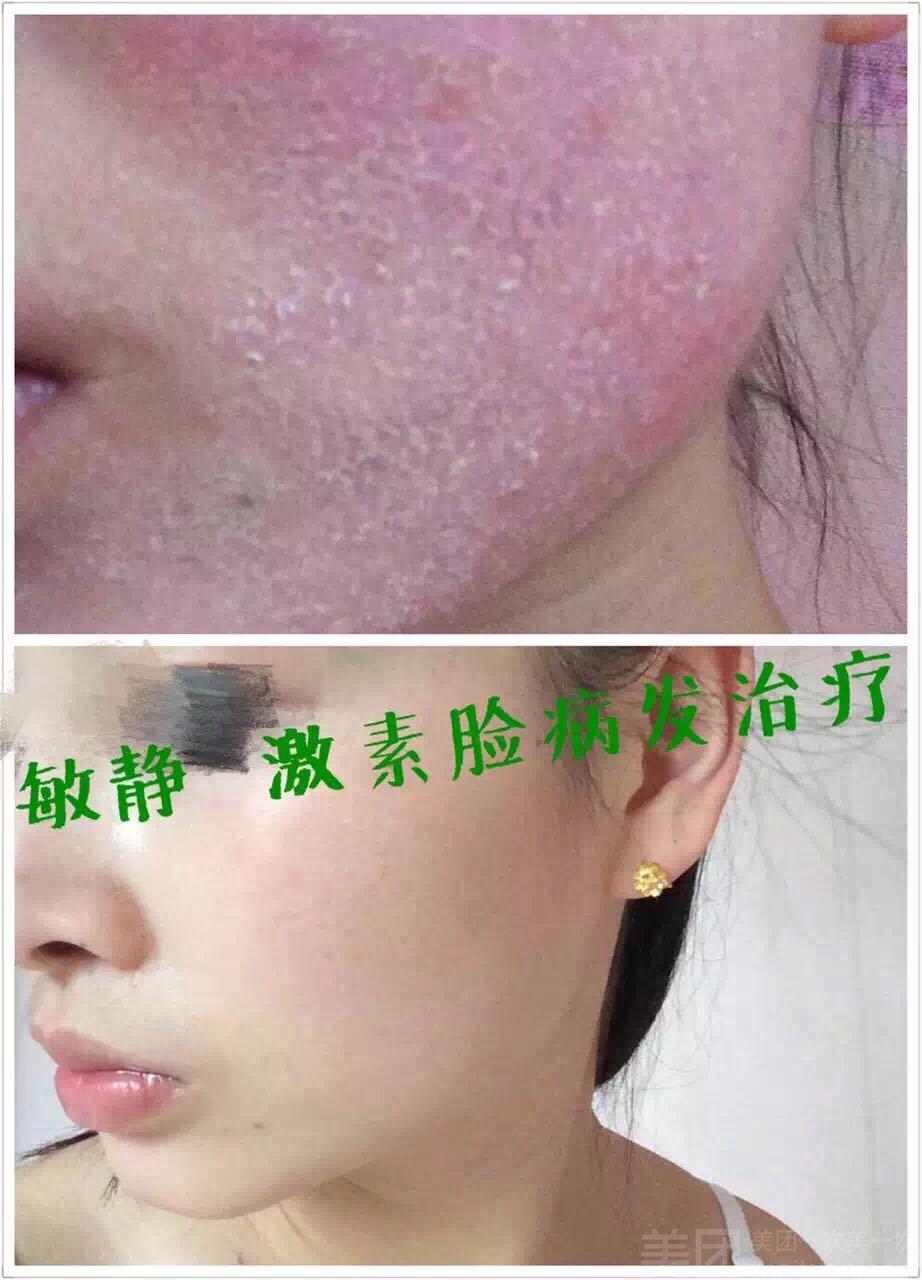 淼之语纤体养生馆(汇川路店)-美团
