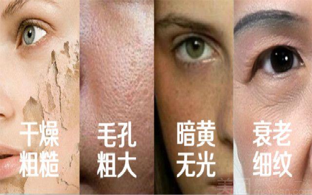 加减美美肤-美团