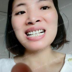 今天终于等来了我的隐形牙套啦,好嗨森本来以为要等半个月呢,结果一个星期点就到了,去到医院本来很担心戴牙套会痛的,因为传统牙套好像都会比较难受的,所以我心里还是有点忐忑不安的