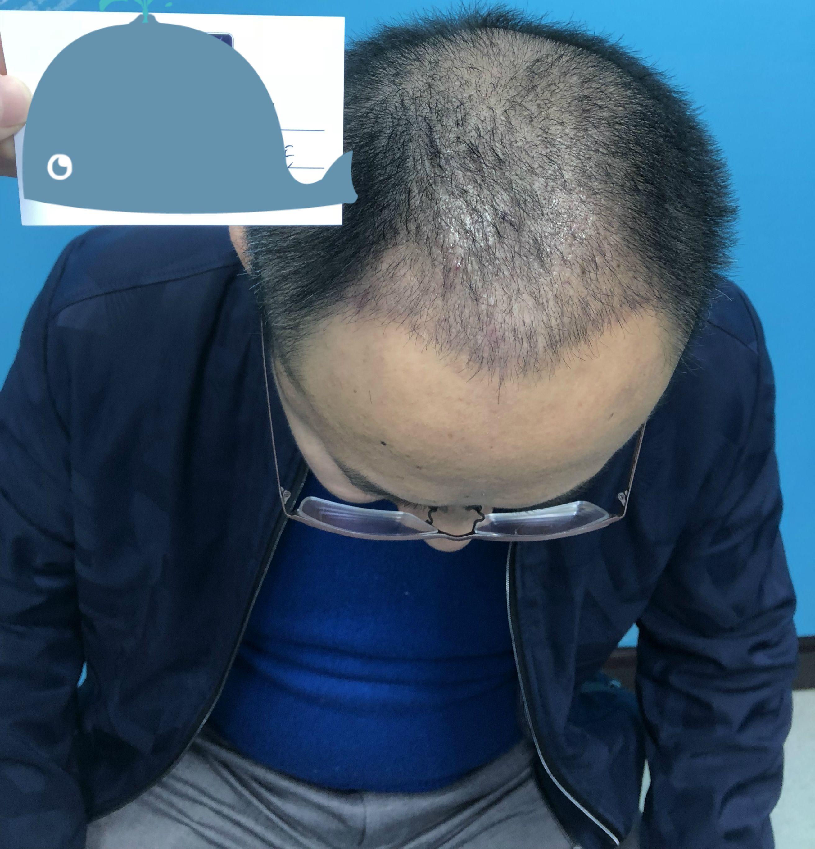 一个月了,头发长势喜人。明晃晃了很多年的脑门终于被头发盖住了。我看有些朋友问会不会影响生活,不会的。当天做完植发手术我就回家了,第二天照常工作,说完全没有肿胀期也是骗人的,麻药过了头上会有点胀胀的感觉,但是并没有到影响正常生活的地步,所以说是0恢复期。