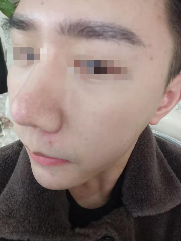 感觉脸上的痘痘都还是好的差不多了,只是说还是有点痘印那些啥子的,这段时间要过年了也是,也去了光博士做了一下微针,刚好他们也有活动,还是划算。  不过觉得皮肤还是变好很多了,希望今年过个帅气的年吧, 哈哈。