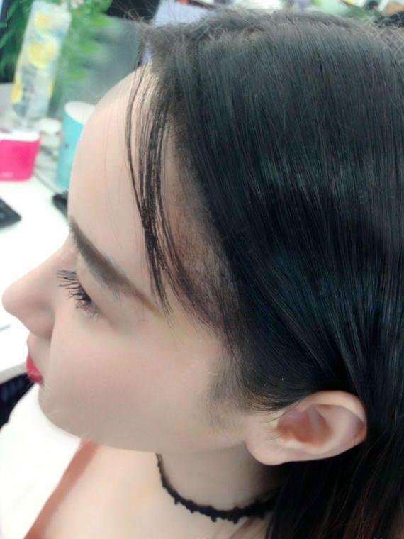 我又来更新啦!做发际线14天,现在可以正常洗头了。平时用前面头发遮住也看不出来植过发际线,这次的照片都是从侧面拍的,大家能更直观的看到效果。 我这次主要是做的侧面的形状,华美不像很多医院,只是单纯的把发际线平行的往下移。那种做法你会发现最后的效果非常的有限,因为很多人是发际线的形状不好看,华美会根据你的脸型设计适合你的美美的发际线形状,大家可以多对比看看哦~