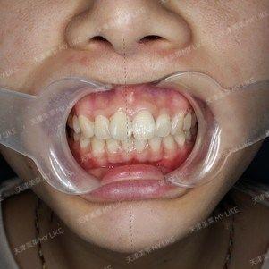 矫正器马上就回来了,周一拔了牙,下牙连着神经,拔以后是会比较疼的,而且拔的难度也比较大,十分钟就拔完啦,我的最后一颗智齿,这辈子都不会再拔智齿了。