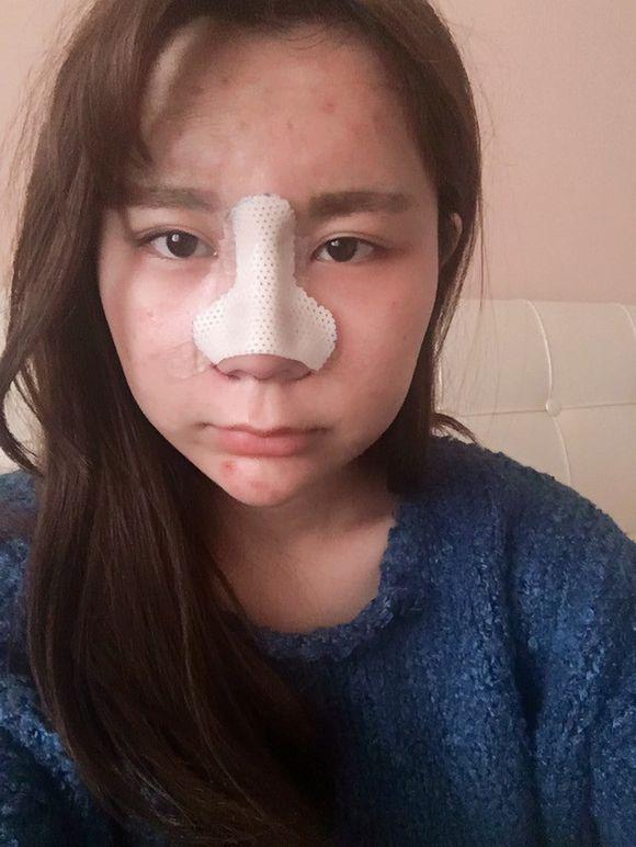 这是术后第二天,已经肿的不成人形了,昨早上起来左眼都睁不开了,脸跟被人打了似的希望快快消肿吧~我脸直接肿方了,有史以来难忘的时刻