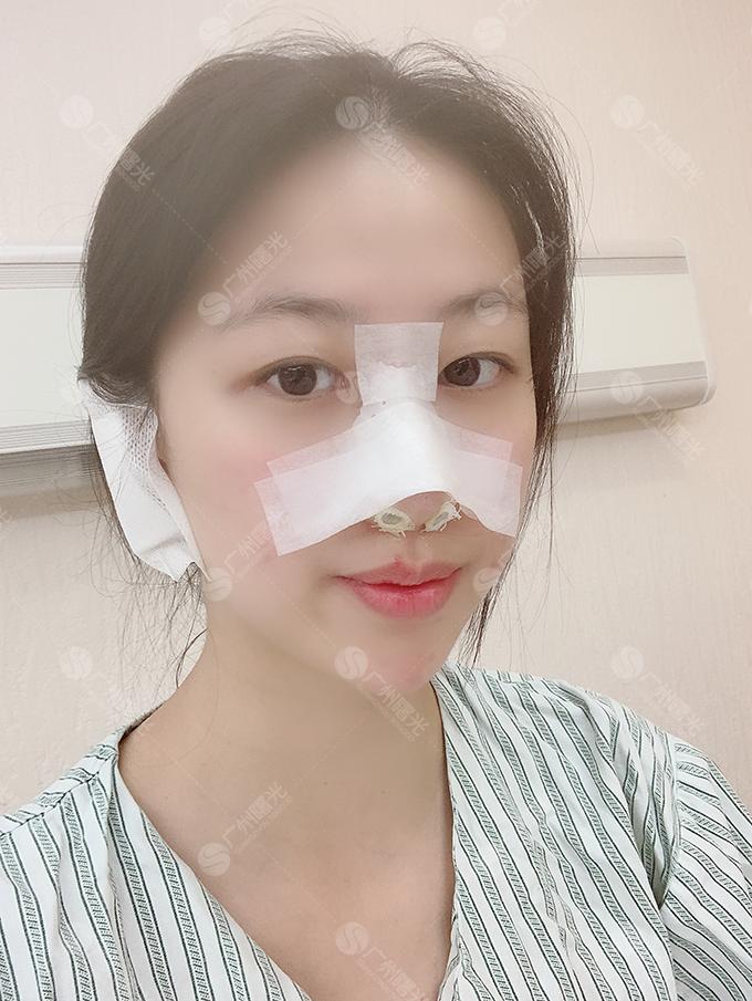 想做鼻子很长一段时间了,以前经常过来做皮肤,经常看见很多人过来隆鼻隆胸做眼睛什么的,我鼻子鼻翼宽厚、鼻梁低,鼻头肉肉的不是很好看,看到那些妹子做了隆鼻后效果都蛮不错,就心痒痒决定也尝试一下,手术之前和医生聊了很长的时间,一直在沟通我说想要比较自然的效果,医生也是特别的有耐心,解答也都很专业,最后订了达拉斯隆鼻(膨体加耳软骨隆鼻),面部也填充了一下,刚做完手术还是挺难受的,今天是术后第三天了,比刚做完的时候要好点了,护士美女刚过来换了药,她说我的状态比其他人好太多了,难道是我比较乐观?拍了几张照片,几天没洗脸了,so请原谅我的美颜过度-=  =-