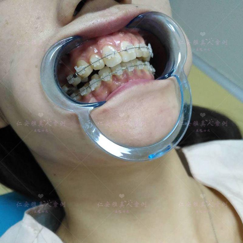 【顾客术后分享】 牙齿矫正之后又过了很多些日子了,自己牙齿的整齐程度越来越满意了,不过还是觉得有一点紧紧的感觉,我的目标是再把上颌收进去一点,现在牙齿刚开始矫正,还是很开心的,牙齿矫正困难的事情就是,牙齿的清洁,刷牙总是刷不干净,矫正牙齿的这个过程很漫长,我会坚持下去,等摘牙套的那一天到来,哈哈哈