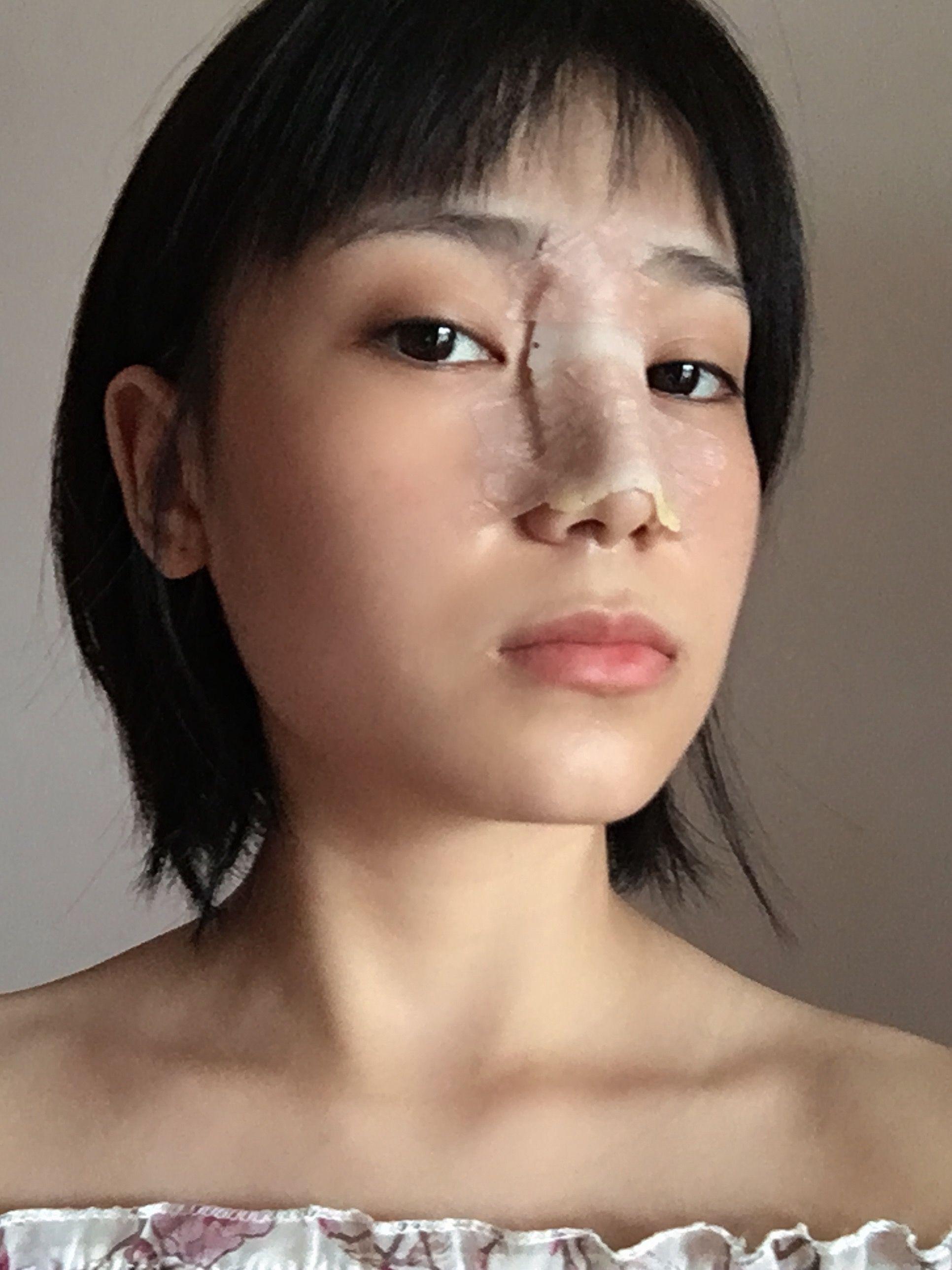 今天是第三天啊,对比术前变化还是挺大的。看看术前的自己庆幸自己做了正确的决定。看到术前的照片,我自己都不忍直视了,我的鼻子之前真的很宽,而且鼻头真的很钝啊,整个面部看起来一点都不精致,鼻子宽真的很显脸大啊,怎么化妆都觉得不立体的啊,看我起来整个人low的很。看到术后的自己现在真的美了好多。话不多说,上图