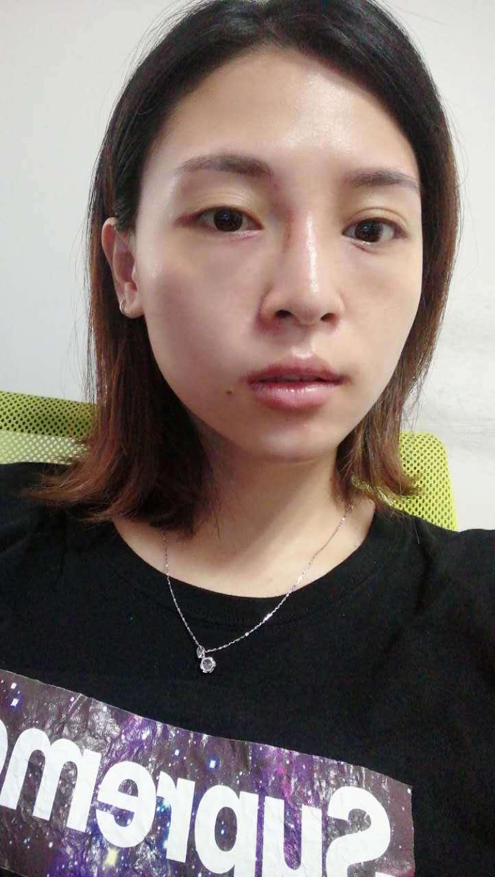 W小姐的工作较压力大,经常需要加班、熬夜,导致眼袋非常明显,由于工作强度高,无时间休息,因此选用了无痕、恢复快的港丹不开刀祛眼袋法,手术无需切开皮肤、不留疤痕,术后可正常工作生活。该组为W小姐术后当晚回家拍摄,图中可看出,术后效果即显,眼袋已彻底消除,有轻微浮肿,眼角处有极小的红点。