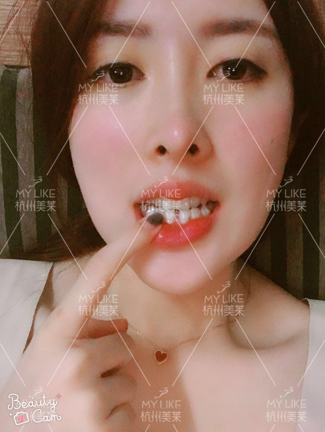 带我妈去看牙了,医生说我妈的牙齿状况不太好,戴隐形牙套效果可能不大,让她带钢牙,金属钢牙的矫正效果比隐形的效果好,但我的工作需要我带隐形的,而且医生说我的牙齿是牙性的并不是骨性的,所以还是比较好矫正的,只是我妈还需要拔两颗牙,听着有点受罪,我就开始劝我妈要不算了?结果她犹豫了一会还是打算做,果然女人爱美,哪怕受罪也愿意,好吧!既然她愿意那就做吧!我们娘两个一起带,到时候一起美美哒!
