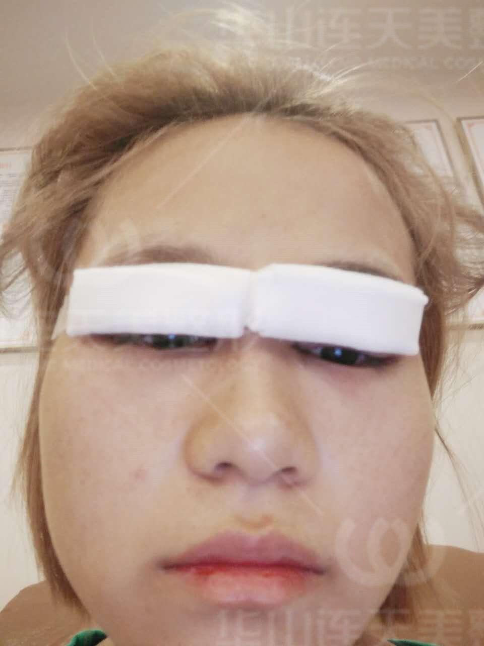 今天手术还是挺快的,我的单眼皮特征非常明显,医生面诊完之后说眼部基础还可以,没什么特别大的问题,术后自拍就有点为难了,纱布挡住视线,糊就糊吧,就当做一个记录吧!