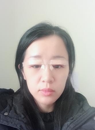 平时大家都一直说我的眼睛好小,其他的五官都还不错,就是眼睛,大大折扣了我的颜值,平时总是羡慕有一双水灵灵的会说话的大眼睛女生。而我却是一个典型大小眼(左眼明显比右眼小很多很多),最可怜的还是上睑厚脂肪的单眼皮,还下垂、并且眼睛瞳孔也凹陷,改善眼睛形状和割双眼皮一直是我的目标,最近下了很大的决心,我一定要变美丽变漂亮,我要做眼部多项手术,这样就不会和朋友吵架的时候,说我是王八绿豆眼了!上周六日和朋友通过多家的面诊,筛选,最终选择了这家医院,然后和医生沟通后,确定了今天来体检,医生帮我设计好形状,然后等待进入手术室,因为我是临时安排手术,所以手术比较晚,但不影响我激动的心情哦。