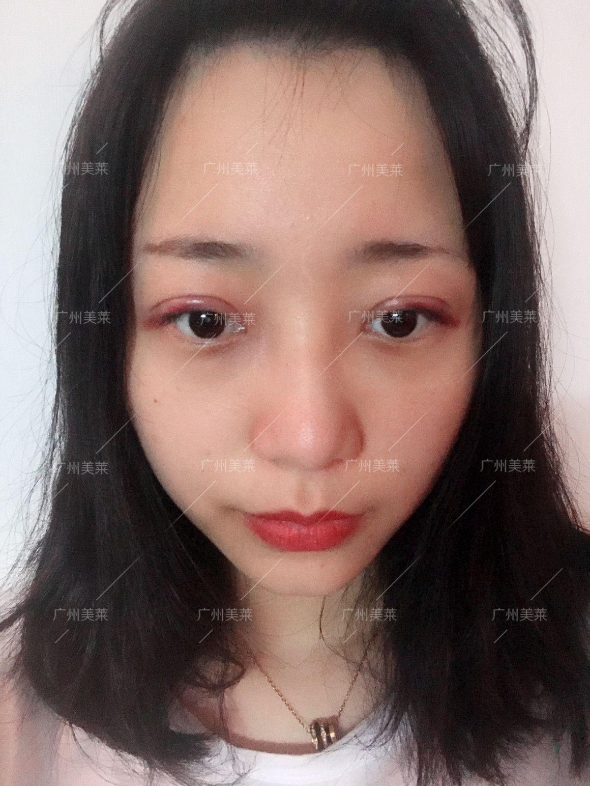 之前我双眼皮是不对称,医生说有轻微的上睑下垂矫正以后会好看很多。昨天做完手术,今早在家拆下纱布。有点红但不会很肿。闭眼能看见清晰切口,双眼皮形状好看!跟我给的参考非常像!开心!