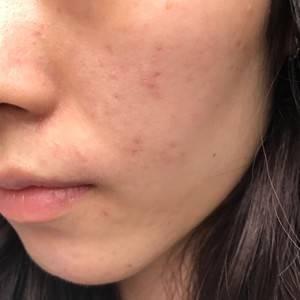光子嫩肤3天了,昨天没记。做完第1天皮肤特别细腻,出油大大减少。晚上按照医生要求敷了面膜。医生说了光子嫩肤做一次有一次的效果,但是因为属于激光类的必须等1个月以后才能做第二次,期待下次的光子嫩肤治疗。大家记得敷三天修复面膜,个人觉得很重要,因为做完脸很干。目前为止,没有任何不适,脸上的痘也明显退红了。希望对大家有帮助,推荐这个光子嫩肤。