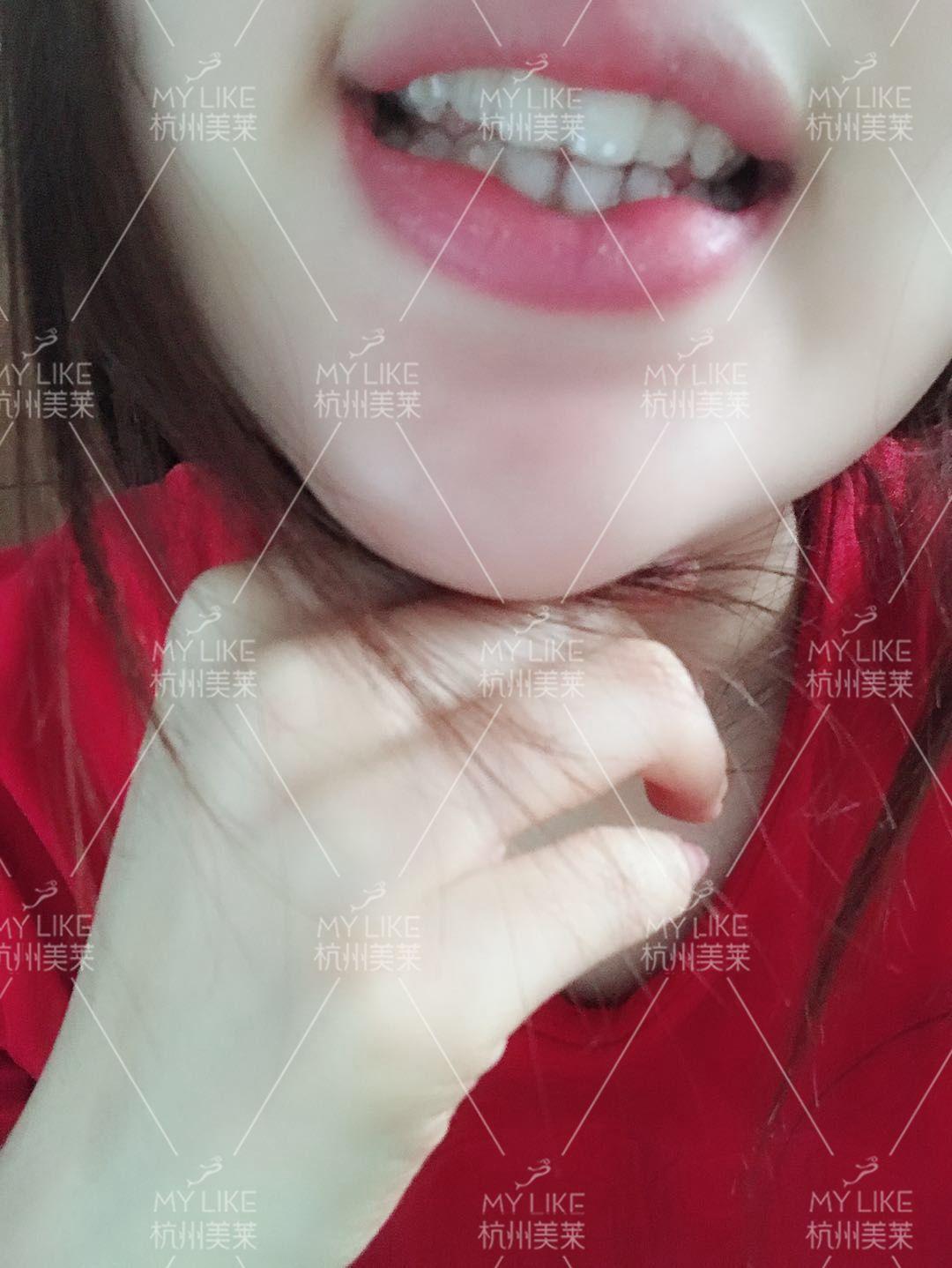 去粘隐适美的附件了,特意感受了几天才写的,整个过程非常的迅速,也没有什么不舒服,也就半个小时,没有什么好说的,我是黏在牙齿里面的,十天换一次。就是粘上附件之后摘牙套不像以前那么方便了~还有就是粘上附件之后的第一天牙齿确实有点酸痛,但是在能忍受的范围之内第二天就没有什么感觉了~  粘上附件之后我发现不戴牙套的时候吃东西牙齿容易咬嘴,附件在嘴里的有一种说不出来的感觉~总结起来就是粘上附件之后,戴牙套比不戴牙套舒服~