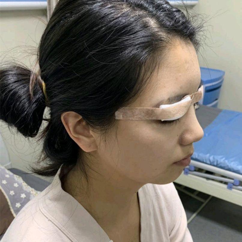 在上大学期间就想去做双眼皮的了,直到出来工作之后,终于有能力做出改变,在家人的支持下今天终于迈出改变的一步,给我面诊的白云医生给我分析了脸上的情况,然后给我设计了一套比较宽的韩式双眼皮。 术前我选择的是局部麻醉,一开始以为做眼睛手术挺简单的,其实也挺负责的,手术过程就有点慌了,因为还是会感觉到疼痛,难克服的应该还是心理,因为全程要配合医生睁眼闭眼设计眼部形状,术后眼睛有点肿胀。术后的每天也不能松懈,眼部护理还是很重要的,医生叮嘱了我术后需要注意的事项。