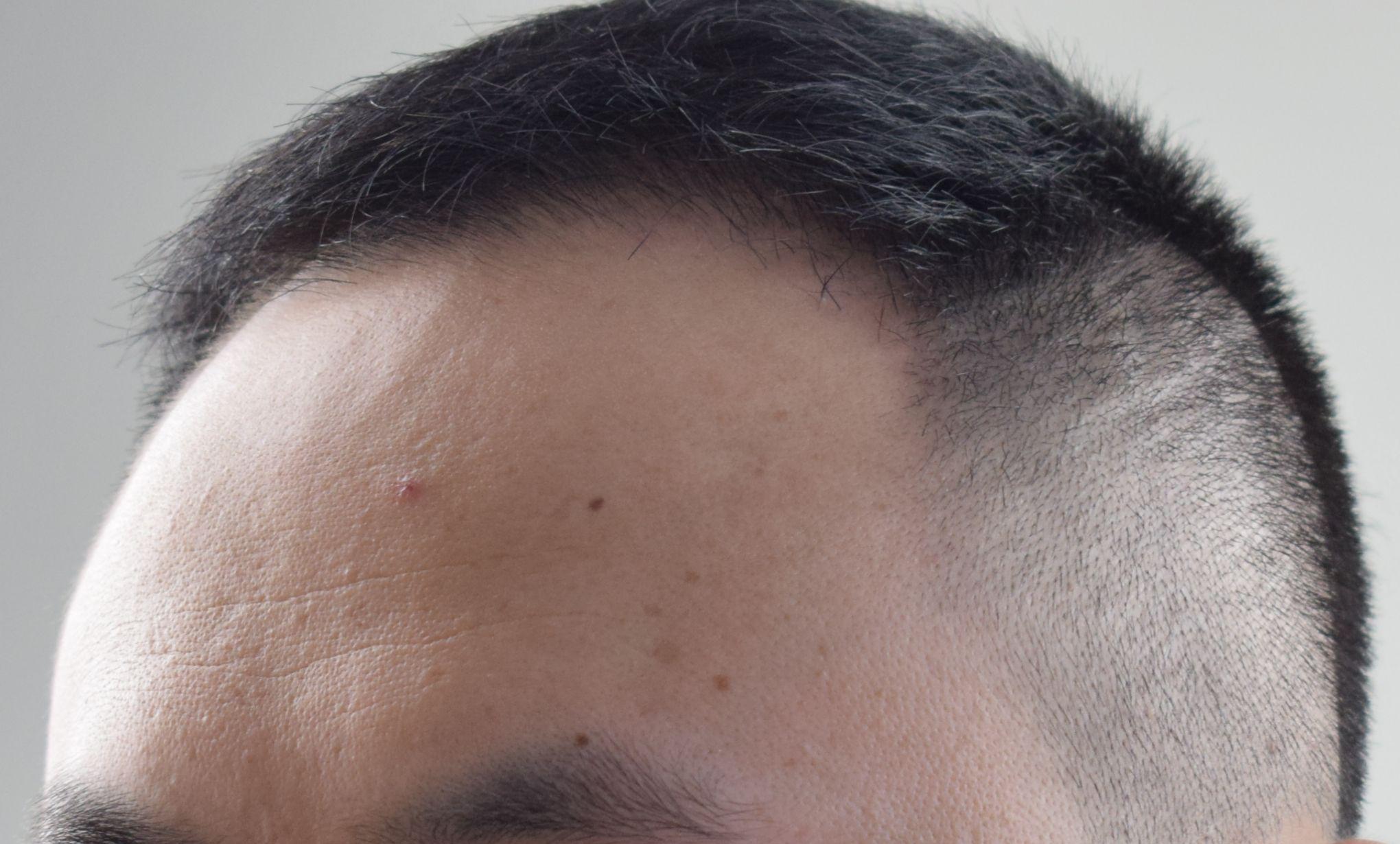 植发后脱落期全都掉了吗