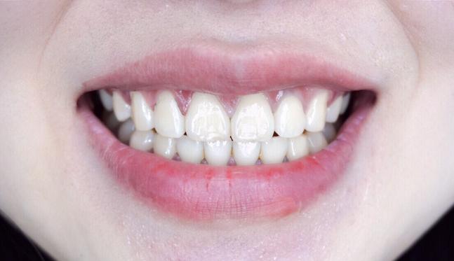 洗完牙齿感觉神清气爽,感觉整个口腔都很清新,这种感觉超级赞~医生建议一年要做一两次洁牙,这次听进去了,以后都来华美做洁牙,很便宜,才25块钱,服务加仪器我还感觉自己占了便宜,哈哈~