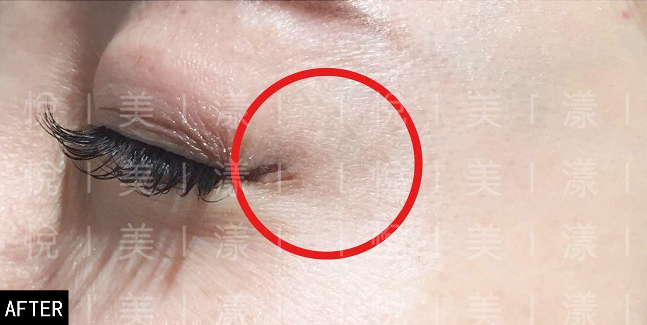 眼部皱纹、眼袋明显,眼眶开始凹陷,上眼皮下垂,眼角下垂,眼神变得黯淡无光,眼部呈现老态。 热玛吉电波眼是取代传统的眼部手术,告别恢复期长,恢复期体感较差,注射又担心材料等问题,目前医学美容市场上能够不需要手术和注射就可以祛除眼周皱纹,实现眼周年轻化,0创伤,0恢复期的治疗方法。