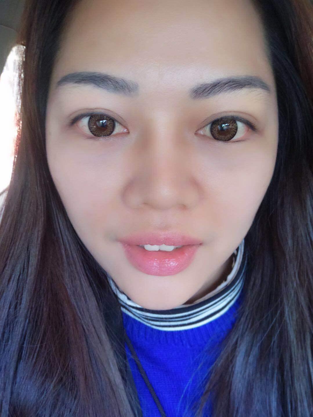 此组图为徐女士术后第七天情况照,眼袋处的肌肤已完全恢复,无皮肤失弹现象。