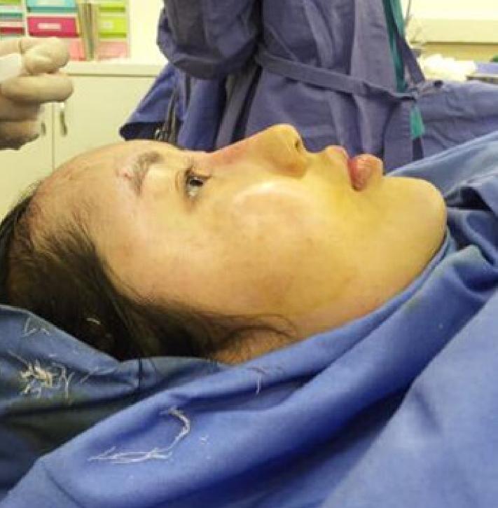 这是手术室里的我,我这次做的是自体脂肪丰额头,主要是额头特别凹陷,尤其从侧面看,让我的脸显得又平又没型。  手术前和院长沟通了几次,对手术方案,我还是很满意的,不知道效果什么时候能显现~