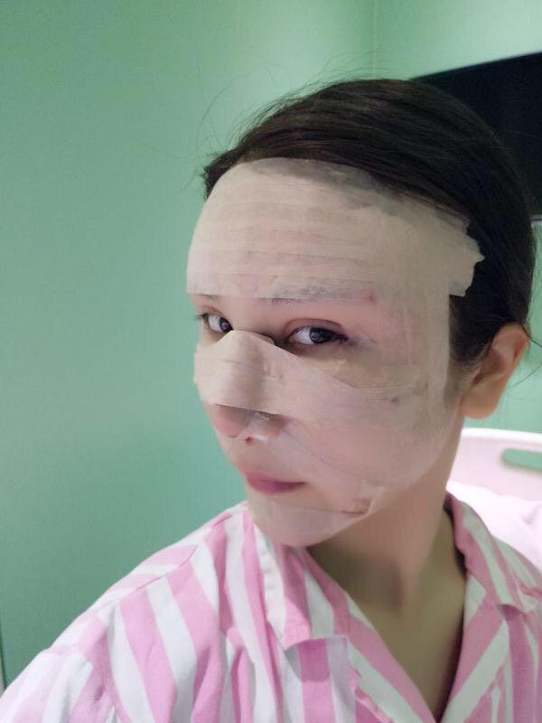 鼻夹板需要戴半个月用来定型用的,手术到现在都没什么感觉,不痛不痒也不难受,手术之前听说麻醉后容易呕吐,可是我都没有,醒来就能活蹦乱跳的,除了大腿抽脂的地方不敢太大动作拉扯之外,其他状态真的超级好。在这个一个礼拜没洗脸,每天只能湿巾纸擦一擦的日子里其实是很煎熬的,尤其是我这种早晚都是要用2遍洗面奶的人,7天不洗脸,真是有够烦躁的,所以现在对我来说希望的就是拿掉鼻夹板,但又想鼻子的效果更好~~~