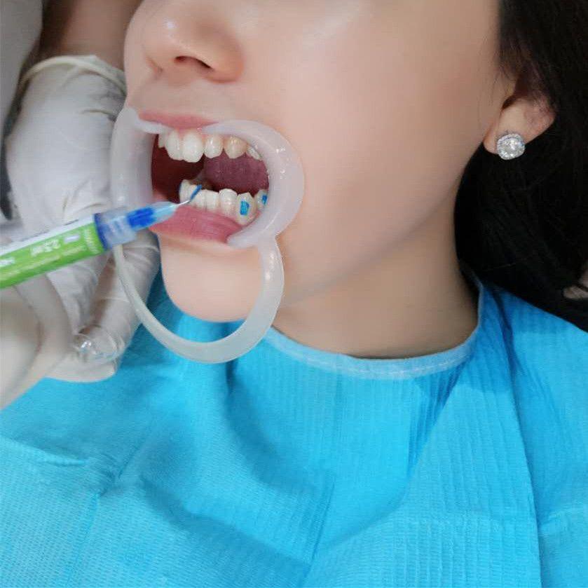 """有没有妹纸和我一样?这么多年一直都""""笑不露齿!""""特别是最近这两年,慢慢开始关注自己的牙齿,我发现有一口好牙,能让笑容更自在、更容易让人心生好感。去年我去牙科做了牙齿美白,之后一直在关注牙齿矫正,通过对多家牙科医院的了解,在今年决定对我的牙齿开始""""拨乱反正"""",希望自己有更好的精神面貌。而且,据我了解,牙齿矫正还可以改变脸型!"""