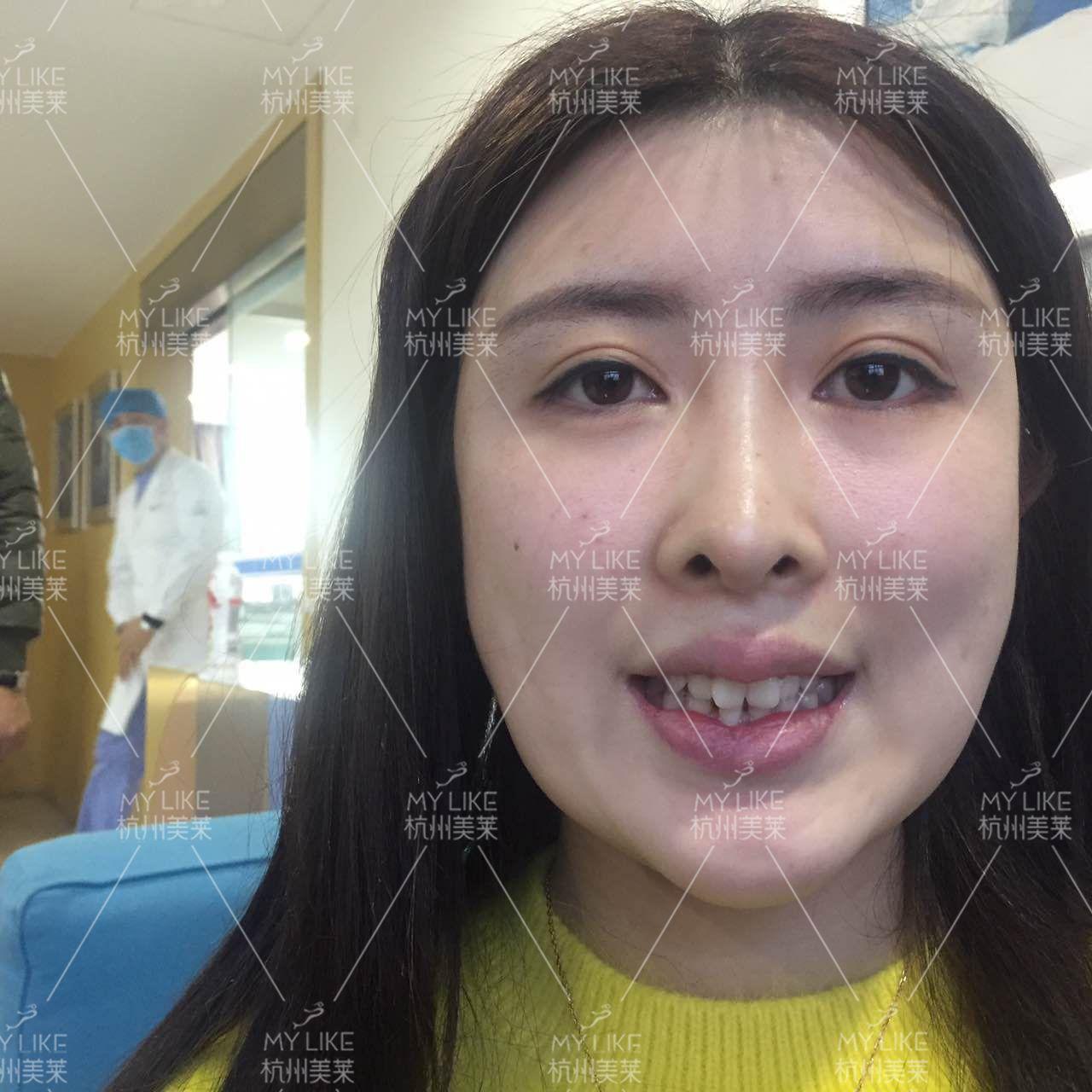 有一口整齐漂亮的牙齿,笑起来才够甜,我的五官很好很小巧,所以我才能成为一名模特,但是我拍的写真和广告都是高冷范或是微微抿嘴笑的,因为我的牙齿不整齐也不好看。在模特圈要想发展得更好,就得无瑕疵,或者把瑕疵变成特色。刚好在美莱看到牙齿矫正有优惠,我就来了。        我做的是隐适美,毕竟我这个行业更新换代太快,如果我只是做普通的牙齿矫正,那么我这一两年之内都不能再接活动,而隐适美的美观度、舒适度高,口腔卫生也容易维护,不影响社交、进食、运动等,况且复诊次数减少,节约时间,对于我这种靠外貌吃饭的人来说是很好的选择。       这天先跟接待我的咨询师打了个电话,到了她就在咨询室里等我,然后就带我去面诊、拍片子。王雷医生从业这么多年经验丰富,很轻易就看出了我牙齿存在的问题,跟医生沟通了之后设计好了方案,我做的隐适美的模型是根据我的牙齿量身定做的,需要先面诊我的牙齿状况然后再订做,40天之后才能带上我的隐形牙套,目前还在等待中,等40天之后带上牙套了再来跟大家分享我的变美日记吧!
