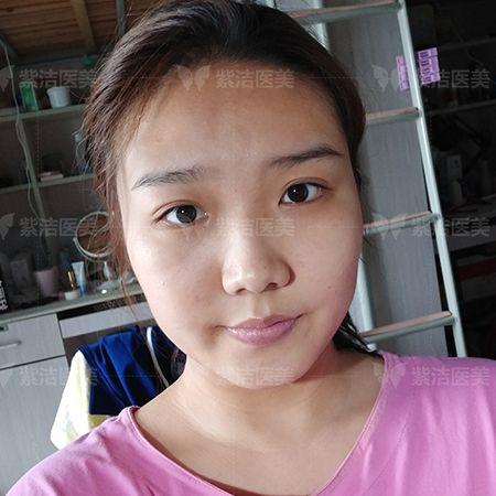 紫洁医疗美容全脸线雕全脸提升术前照片