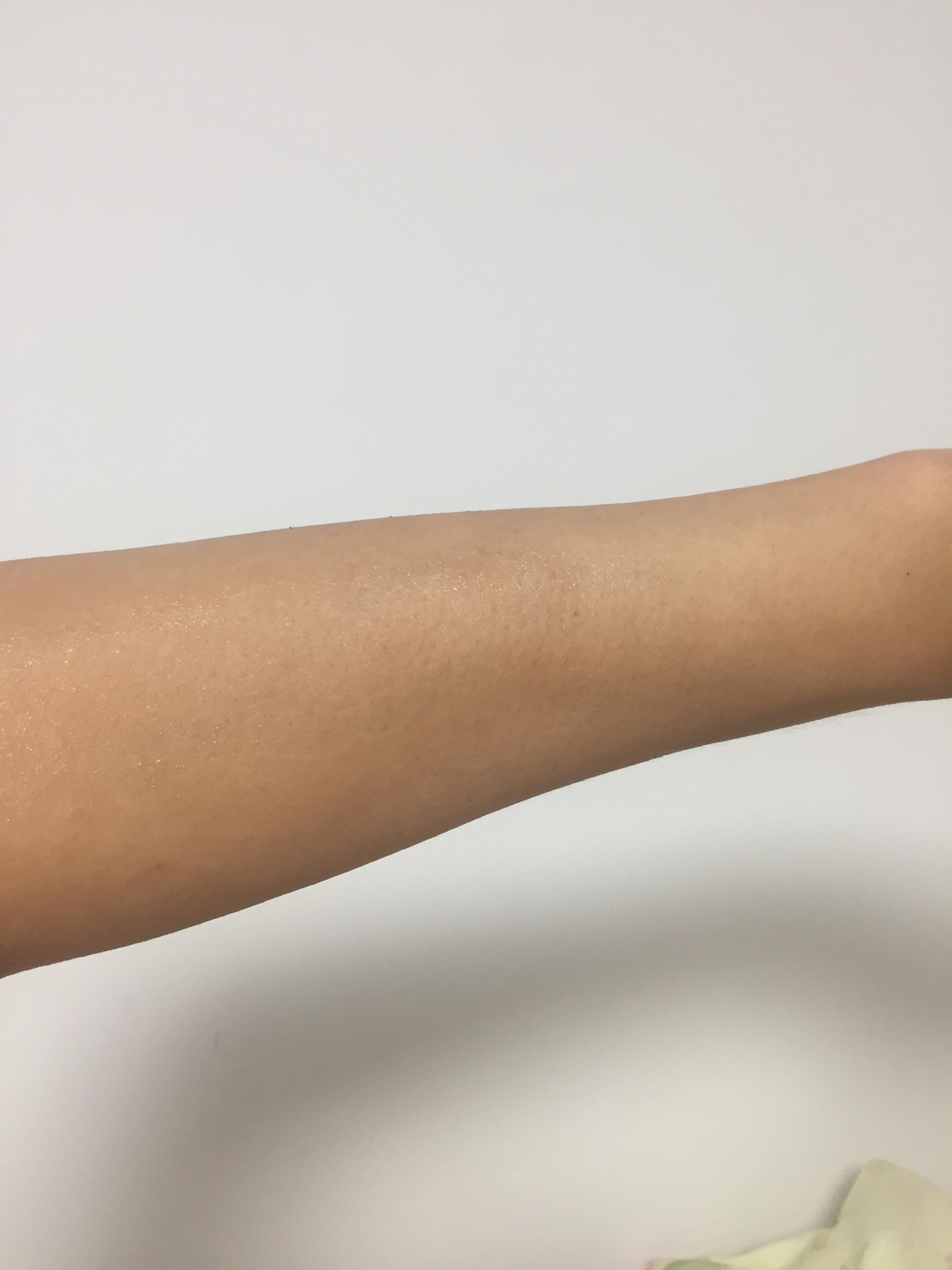 皮肤有点干燥,备皮的过程都尤为的小心,也告知术后需要回去多补水,家里有芦荟胶的,也可以在治疗的部位涂抹芦荟胶多补充水。这是第一次治疗,后期需要根据疗程治疗才能达到更好的效果。