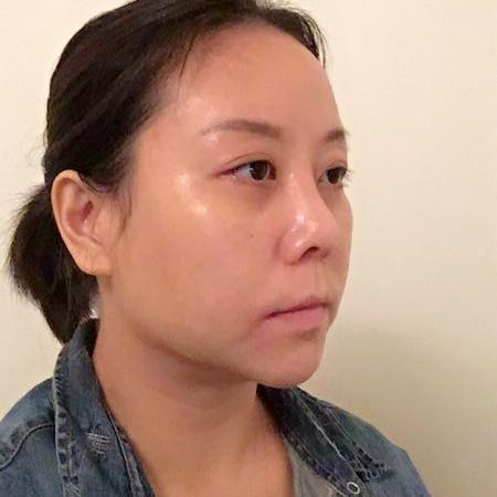 目前脸上皮肤状态很好,会感觉皮肤的状态是在一个逐渐上升的阶段,每天都能感觉到皮肤一点点变好这个还是不错的感觉,哈哈,好多同事都说我最近气色不错,被夸的感觉还是很好地啦,其实这个也是我的一个感受,超声刀虽然主要是提拉肌肤,但是对皮肤的改善也是挺明显的,和护肤品什么那种遮瑕出来的效果不一样,是从内而外的那种气色的改变,会显得特别自然的粉嫩,感觉年轻了一些。