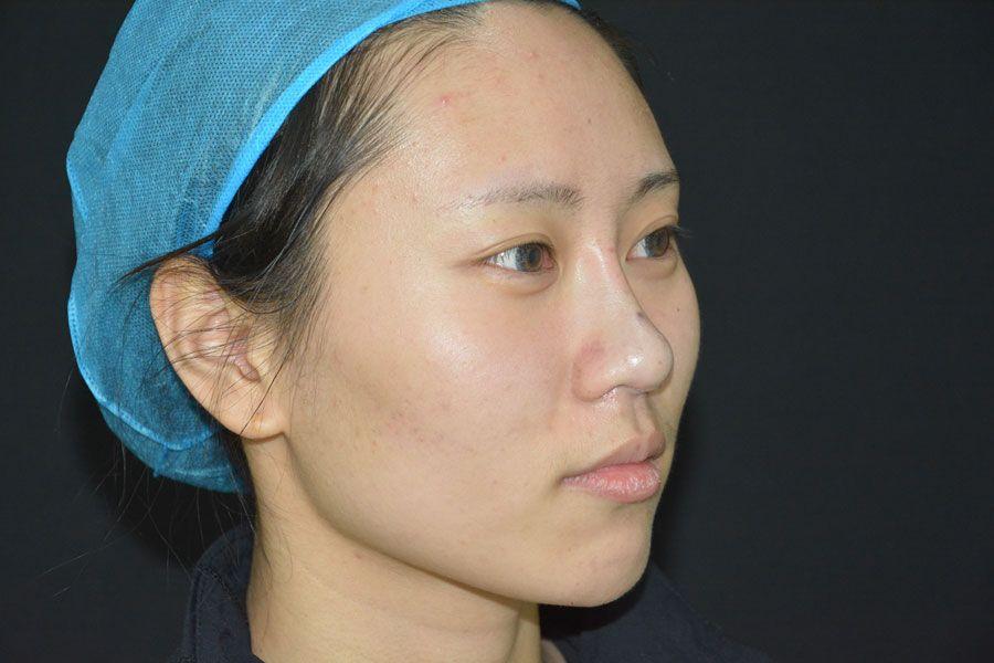 其实我长的也不算丑,但是低鼻梁和大鼻头成了我的短板,看起来揉肉肉的,一点都不秀气。 都说鼻子的外形不仅在面部美学上具有特殊意义,而且对人的整体形态有很大影响。仅仅改变一下鼻型,脸上其他部位不动,都可以起到改头换面的作用。 做完的第一天还有点红肿,但是效果已经出来了,相信后面的效果会越来越好的~