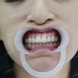 成功的摆脱了我牙齿不齐,牙齿弧度不佳的问题。很感谢天津美莱,让我拥有了一副这么完美的牙齿,笑起来都再也不觉得尴尬了,也不会再刻意抿着嘴笑了。现在我的牙齿又白又整齐,之前医生说最多只能吃花生这么硬的东西,现在可以渐渐吃更硬的东西了。医生说这也算是一种挑战因为我之前是有种恐惧的心理,生怕牙齿一咬硬东西就掉下来了。不过现在恢复、适应的都很好。人也美多了,真的感谢自己当初坚持的信念。未来也要保护好自己的牙齿。