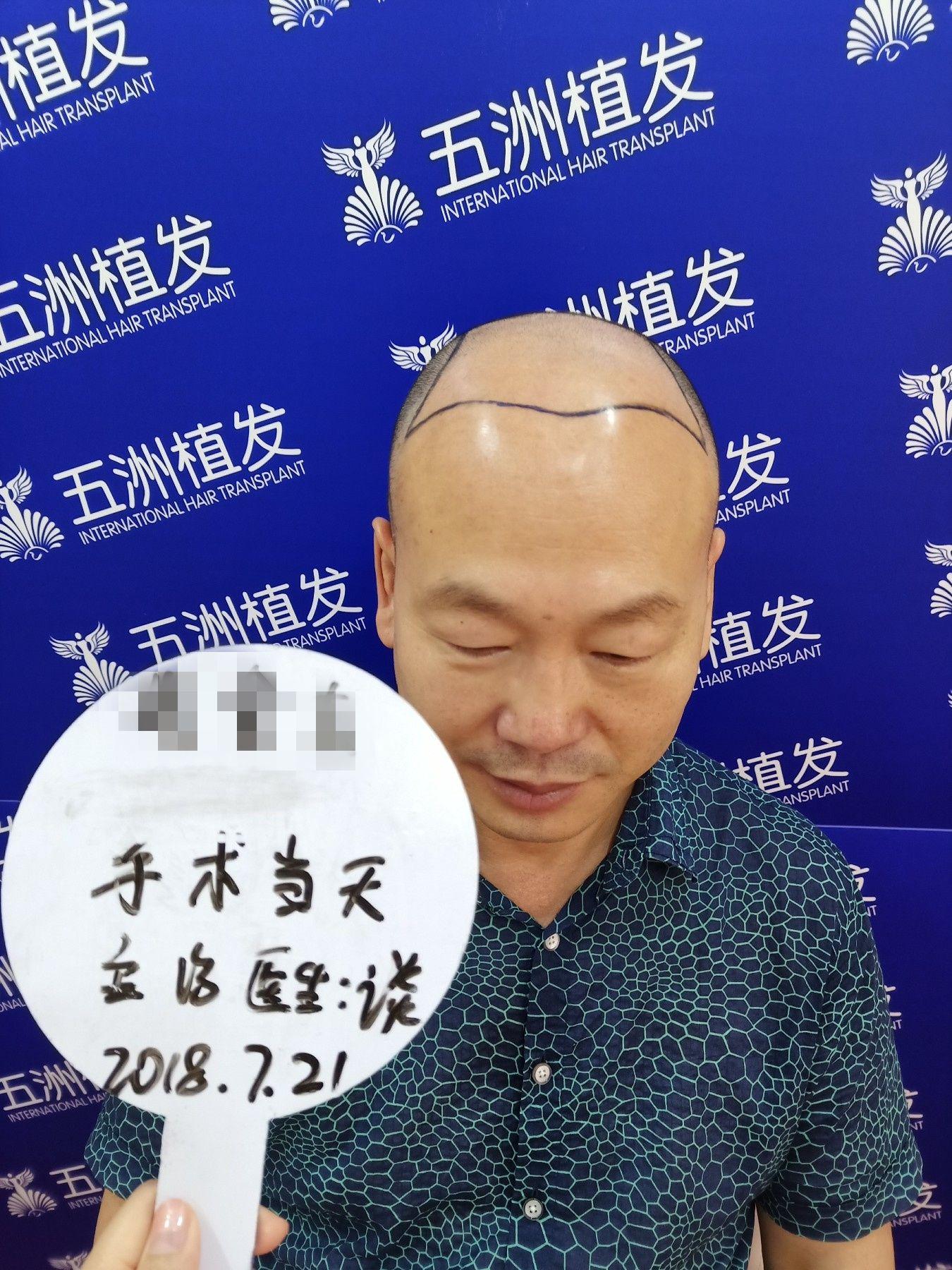 漳州植发哪个好推毛博士
