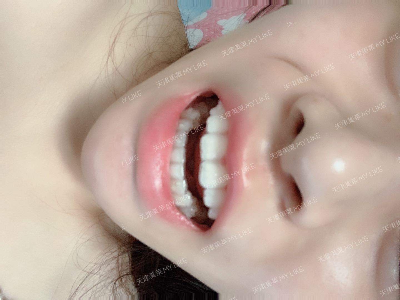 感觉好快啊!牙缝小了特别多,效果特别明显,有没有!换新牙套基本都不疼,就是第一天感觉稍微有一点儿紧,完全不疼不难受我大门牙中间的牙龈一直有点儿肿,医生把我每副牙套都给打磨好试戴完才给我的,超级贴心!助理们三天两头给我发信息打电话让我感觉过去换牙套,比我自己都上心反正我觉得整体都挺好的,我是挺满意的