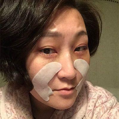 拆完线还是有点淤青,不过不严重,出门可以戴墨镜遮下!然后敷下眼膜不要离伤口太近,预防感染!