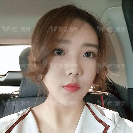 紫洁医疗美容全脸线雕全脸提升术后三个月照片