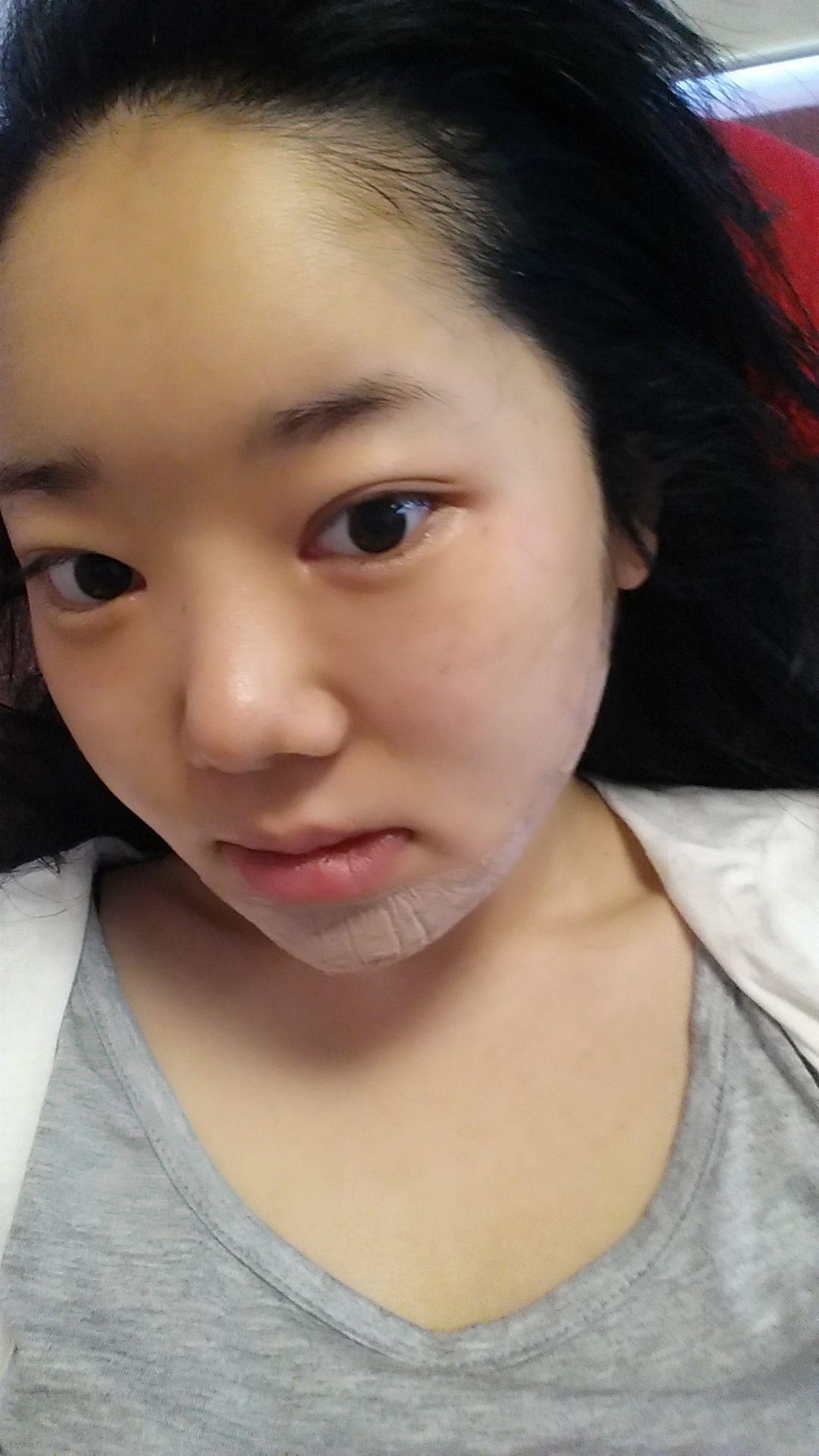 因为我一直是很臭美的女生,很爱打扮自己,爱化妆,爱自拍,但是我脸上有一个明显的缺点就是我的鼻子不好看,鼻头塌。我一直看韩剧里面的女主的那种小翘鼻非常羡慕,希望自己能有这样的鼻子,就算没有微翘的俏皮感,至少也不能是塌的。