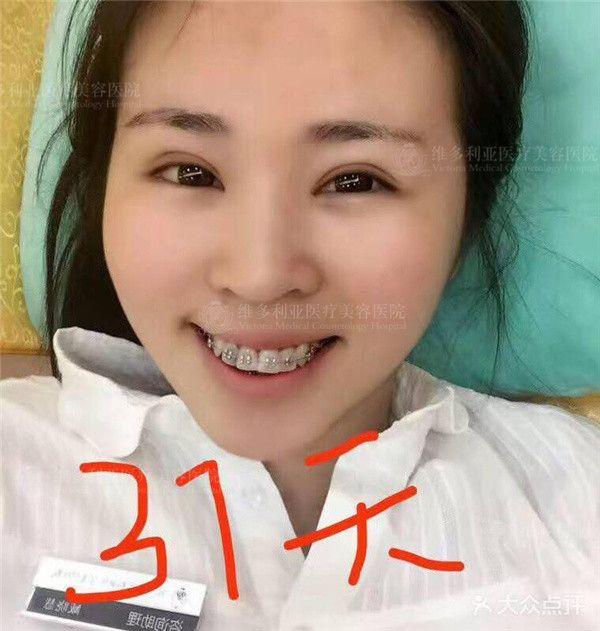 """短短一个来月牙齿变化竟如此之大,可见牙齿的可塑性是超乎想象的,就像我本人一样(*/∇\*)可塑性的牙齿与可塑性的我相互促进,共同发展٩(๑^o^๑)۶常言道种一棵树的时间是十年前,其次就是现在。人一旦""""固化""""了是很难再改变的,行动起来吧,明天的你将感谢今天的自己!"""