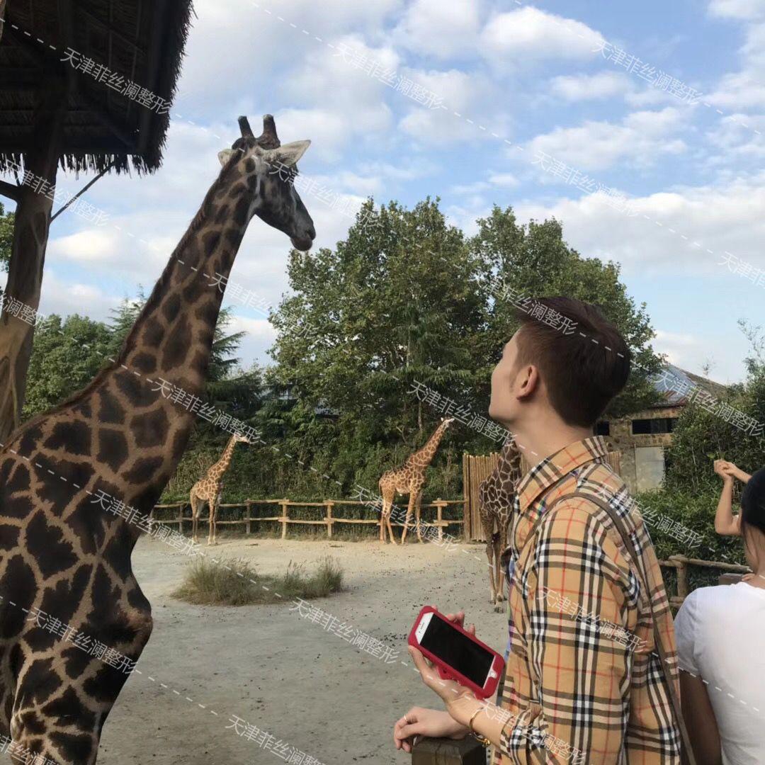 和朋友一起去游乐场和动物园玩了,去看了长颈鹿,感觉好像是没有鼻子,看来还是我的鼻子好看呢,过了这么久了,我还是觉得我的鼻子是挺适合我的,整容改变了一代人的生活,有的人因为颜值在生活上有了翻天覆地的变化,因为颜值的提升,得到了别人的赞美与羡慕。很幸运我能接触到整容,现在我再回顾过去,我都觉得好像是做梦一样,我发现周围总有人说追求什么天然美,天然美的人在这个社会已经很少了,大部分都是跟我一样的帅哥,哈哈 我新染了一个发色,特别喜欢,超级帅的,欧洲风格的感觉,就是这么酷,哈哈