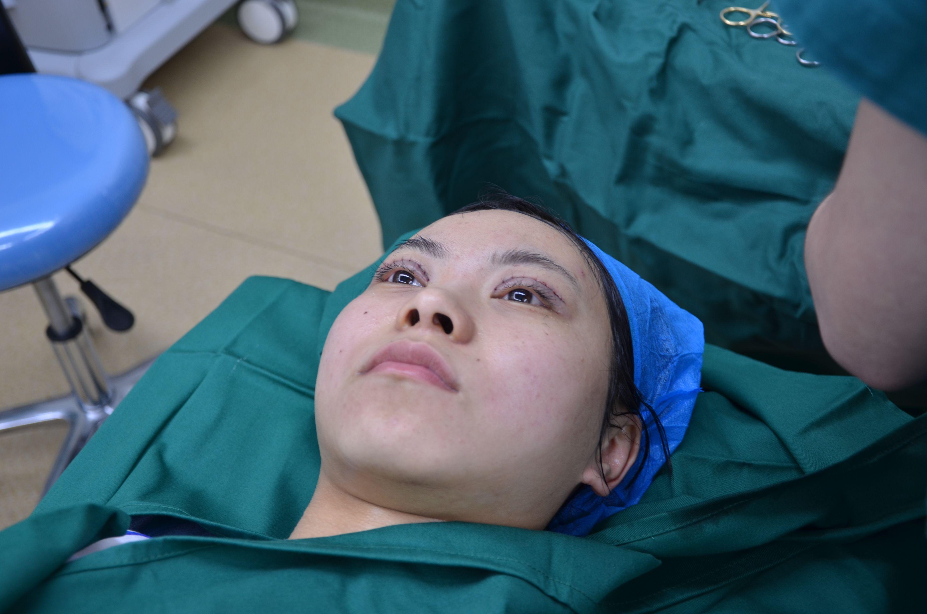 然后进的手术室,我自己感觉整个过程做双眼皮的时候除了打麻药的时候