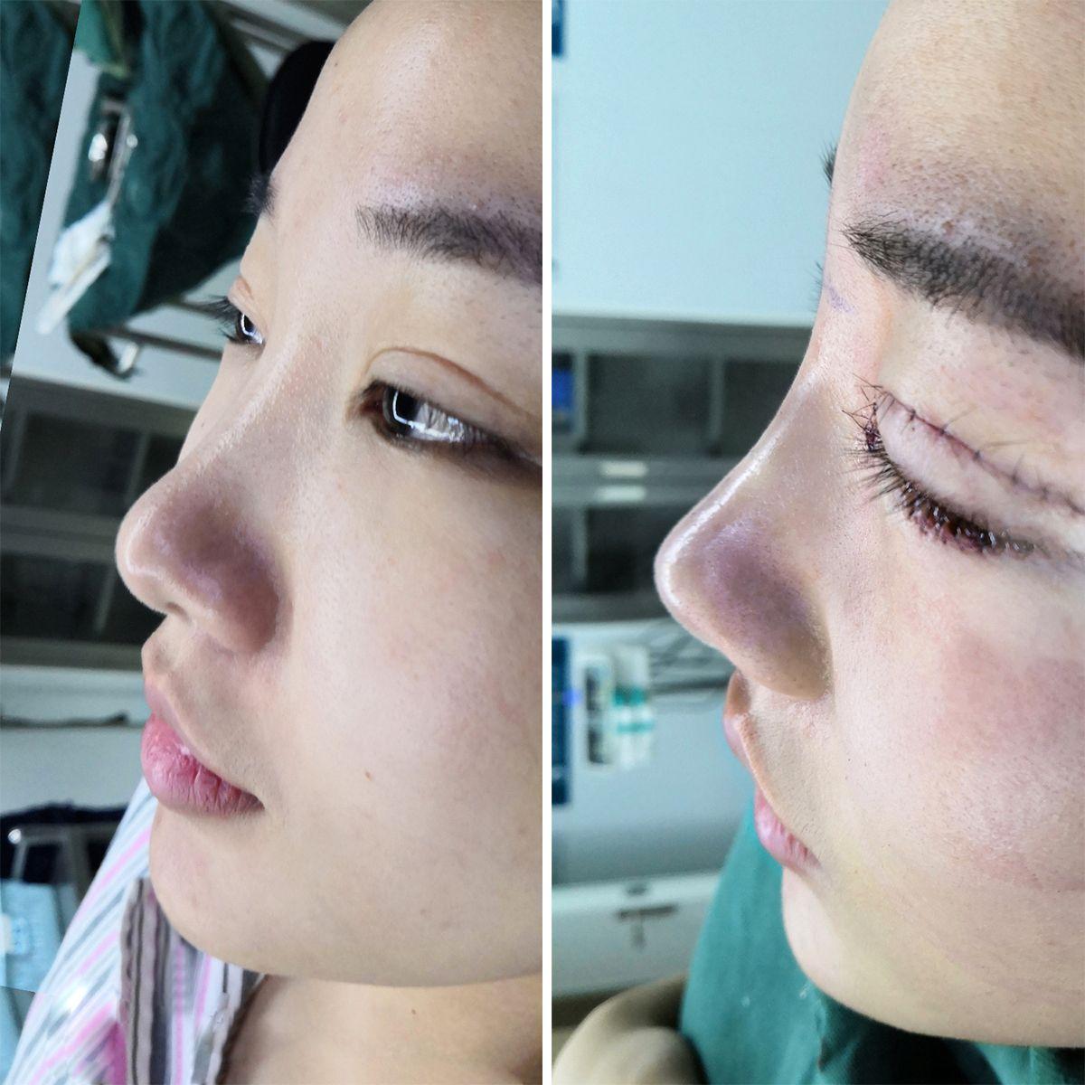 我到了沈阳童颜,见到了主任,我也询问了一下关于我鼻子的问题。在沟通中发现,我的鼻子很矮,因为鼻背部分的缺陷,与鼻头较大,所以看起来很笨重。之前我是考虑过做一下单纯的隆鼻手术,但是我发现并不能彻底解决问题,不如鼻综合手术对我帮助更大一些。之后我与主任沟通过后见到了院长,我做了一些手术前的准备工作。之后我进到了手术中,院长给我进行了画线与设计,在设计中我也与院长沟通了一下,毕竟我看到很多姐妹们的分享日记,在术前与院长沟通过程很重要,嘻嘻。 做手术嘛难免会有一些紧张感,不过院长很暖心的给我进行沟通,让我有很大缓解。而且这次手术,我也做了眼综合手术,嘻嘻···毕竟多改善一下对于自己的颜值也是很有帮助哒~ 好啦,姐妹们今天就先分享到这里,希望姐妹们能够多多关注我,如果姐妹们想要了解我术后的样子一定要持续关注。嘻嘻··