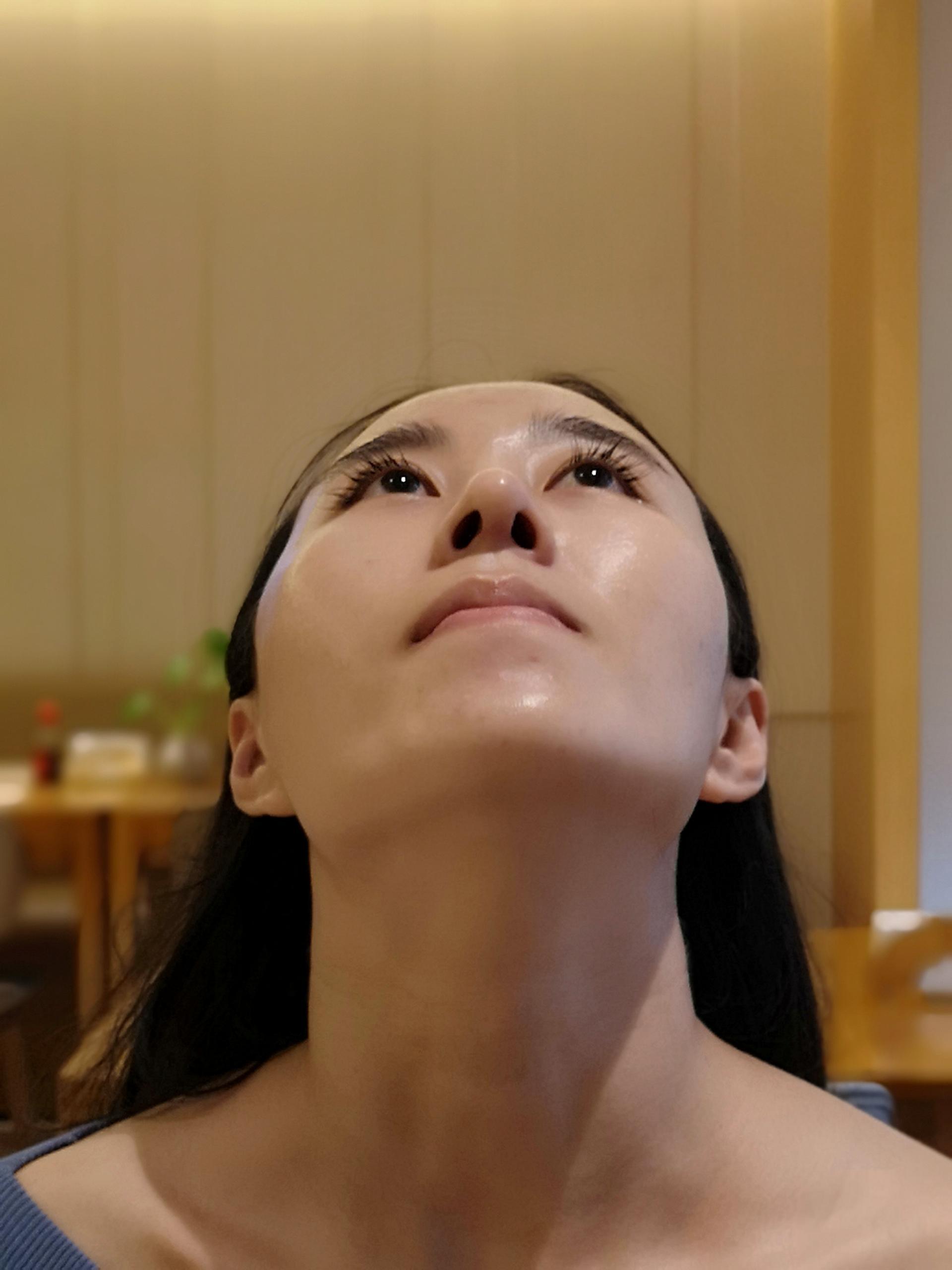 做完鼻子以后确实自信了不少。术后一直坚持戴鼻夹,吃药,抹药膏,多吃清凉下火的食物。一个月,鼻头增生得并不严重。希望以后能够坚持健身,争取身体素质的整体提高就更好了。