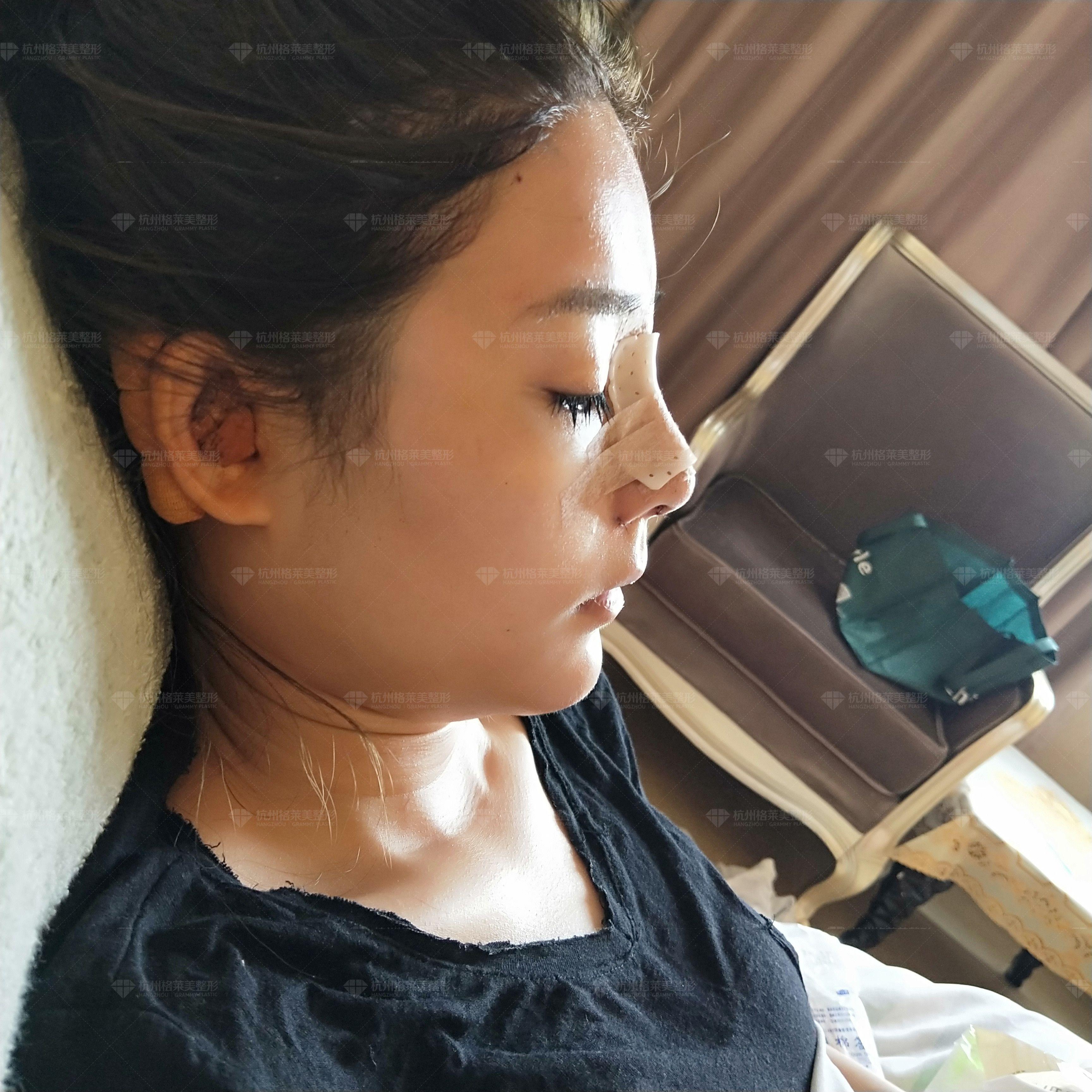 做完手术的第一天,早上起来就送来了早饭,一碗清粥小菜还有一个鸡蛋。吃着吃着医生就过来查房了,我问医生我老是感觉流鼻涕怎么办,医生说是正常的,因为鼻子没有插引流管,用棉签擦掉就行了。我做的是双侧耳软骨鼻头,所以两边耳朵都会疼,睡觉的时候都不敢动。还好我平时的习惯就是平躺着睡觉的。 做手术之前我还是很紧张的,因为我做的项目比较多,怕手术时间太久会有风险,后来麻醉医生来见我的时候我觉得还是很靠谱的,看上去经验很丰富的样子。我做的是假体隆鼻+双侧耳软骨垫鼻尖+鼻小柱延长+鼻头塑形+宽鼻+鼻翼缩小+自体脂肪填充颞部,但其实也就是一个鼻子和脂肪填太阳穴,不过要吸大腿上的脂肪,还好量不多,术后穿几天塑身裤就好了。做了宽鼻矫正希望效果能够比较明显吧。