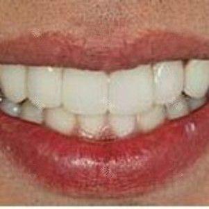 """宝宝们可以看到我的牙齿生长的可以说是很不规则了,嘻嘻,真的是很另类加特别了呢~自己也提前咨询了不少医院,但是医生给的建议都不是太满意,也是偶然的机会,在朋友的推荐下去到了美莱,医生建议先给牙齿拍了片子,因为美观嘛,所以就选择了半隐形的陶瓷托槽矫正,哈哈是不是感觉不太明显啊,刚戴上的前三天确实是疼的,上下牙不能碰到一起。我有个毛病睡觉有时会不自觉的咬下牙,这时就会疼醒,不过可以接受,毕竟只有当天晚上会这样,后几天只会越来越轻。再后来的日子就剩下各种好笑的""""噩梦""""和趣事了,当然最重要的是变化~"""