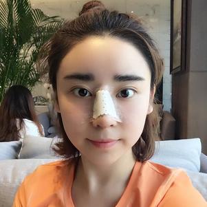 今天是第四天,看着自己带着鼻夹板总有点怪怪的~哈哈哈,以前感觉做一个鼻子是很容易的事,没想到是个精细的活,太考验医生的技术了。