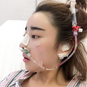 现在是术后第三天,还带着鼻夹板有些轻微的肿, 明天换药很期待我术后的样子  哈哈,你们也很期待吧!!